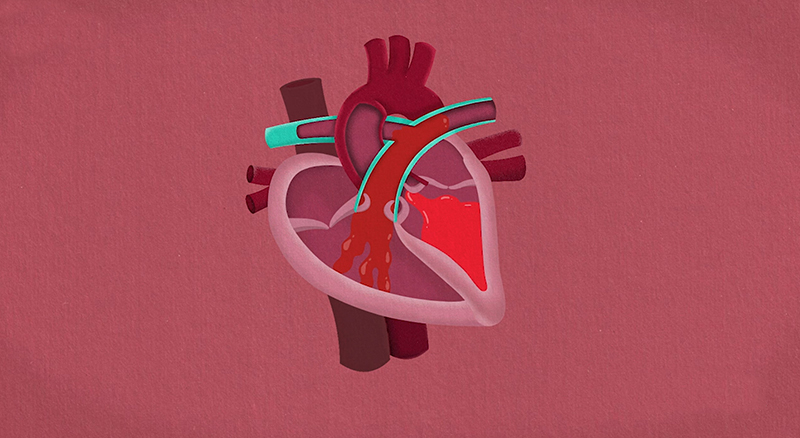 Patient engagement crucial to reductions of heart failure readmission rates